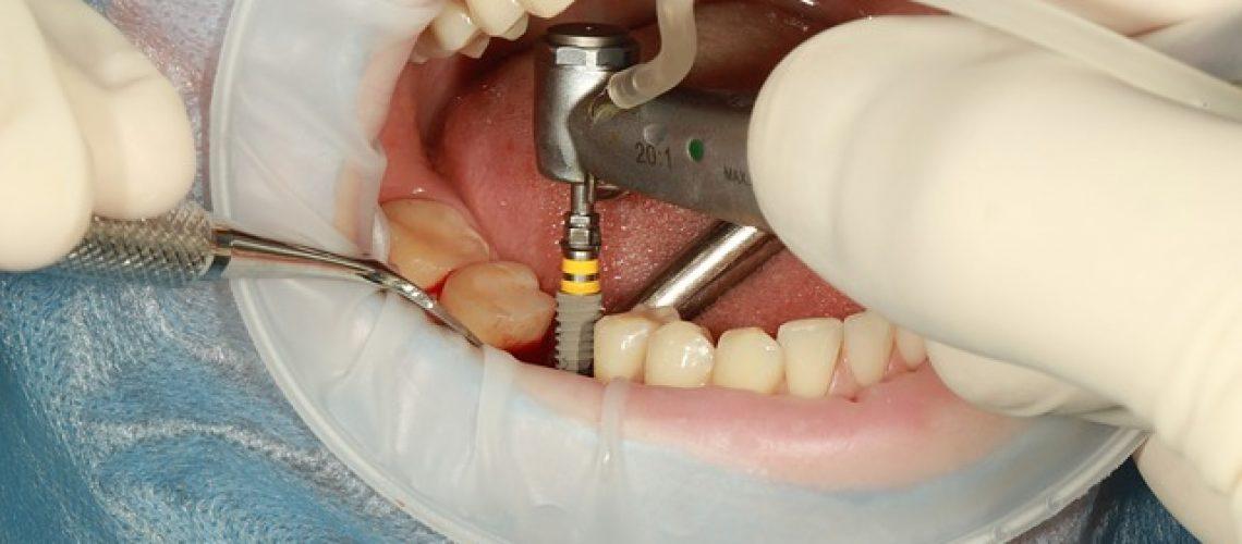 dental 3754769 640